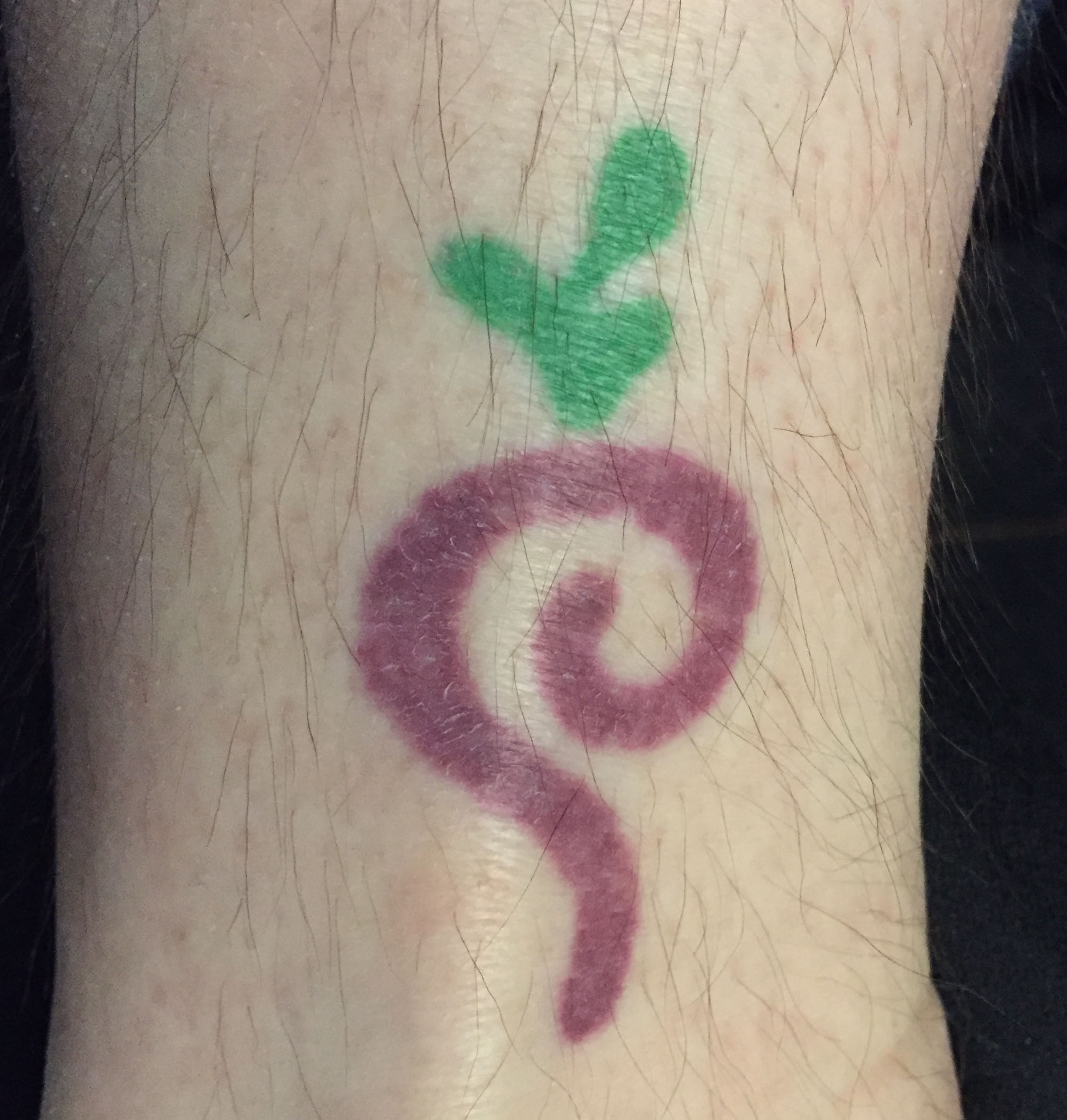 Deadbeet tattoo as of 2015