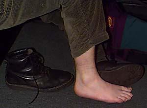 [Leg - Before]